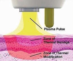 NeoGen-Plasma-How-it-Works.jpg