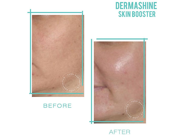 Dermashine Skin Booster - Medical-Grade Hyaluronic Acid