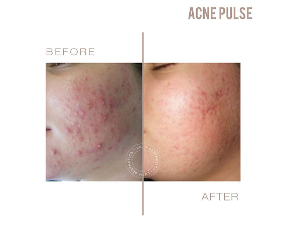 Permanent Acne Removal Treatment
