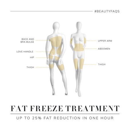 BEST TREATMENT AREAS FOR FAT FREEZING