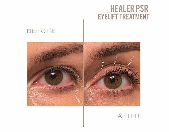 Healer Plasma Skin Regeneration