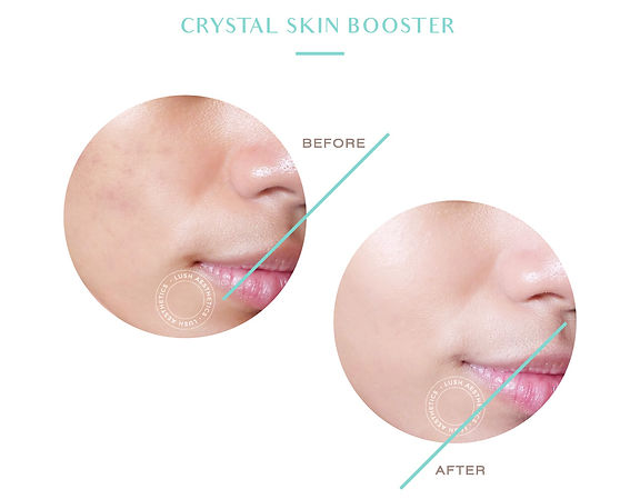 Crystal Skin Booster 1