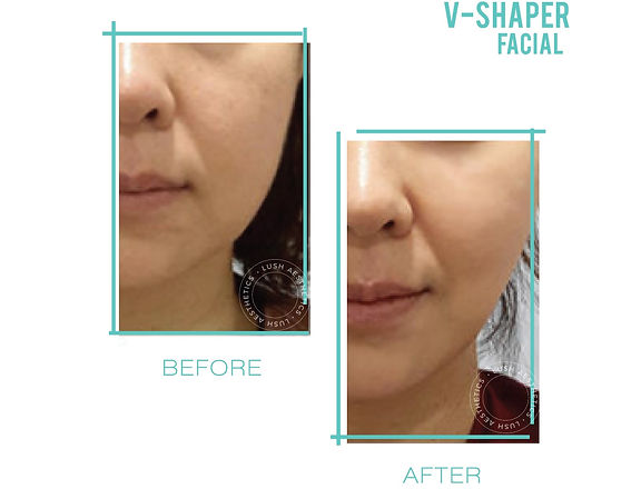 V-Shaper Facial - Contour & Define