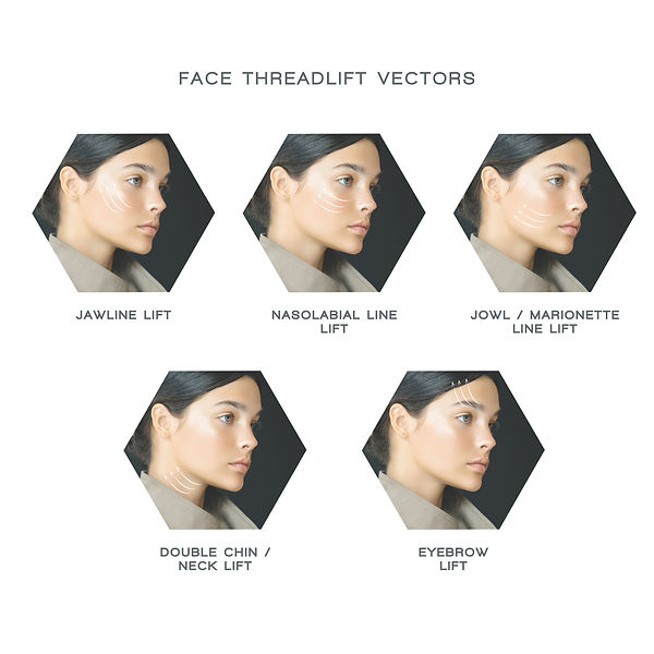 singapore face threadlift, aesthetic doctor, aesthetic clinic, threadlift for face, pdo threadlift, face thread lift, thread facelift, lush medical clinic threadlift
