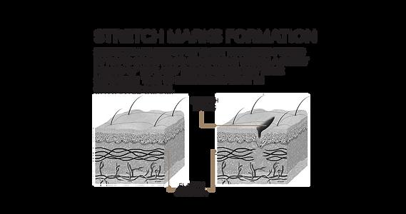 mode aesthetics_stretchmarks microneedli