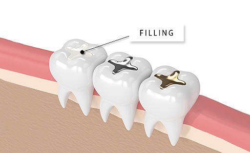 Dental Fillings SmileMakers Pocatello Idaho