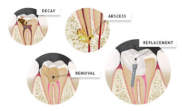 Root Canal Therapy Steps SmileMakers Pocatello Idaho