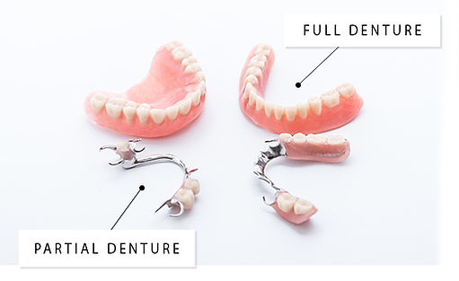 Full Dentures Partial Dentures SmileMakers Pocatello Idaho
