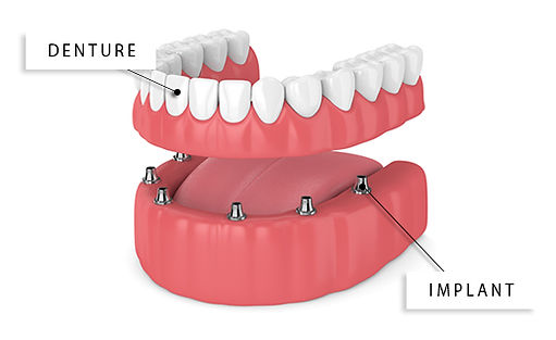 Denture Implant SmileMakers Pocatello Idaho