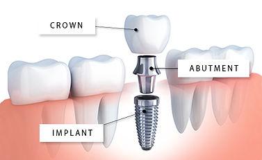iStock-648420784 (Dental Implant) WR.jpg