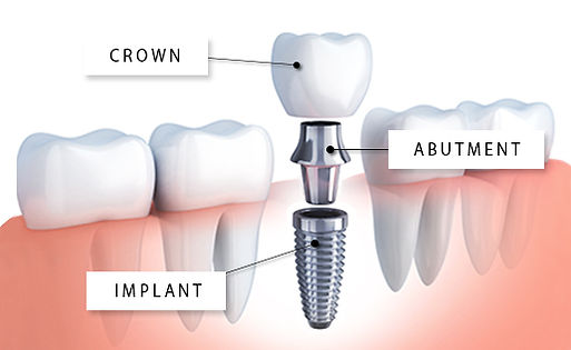 Dental Implant Crown Abutment SmileMakers Pocatello Idaho