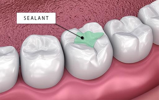 Dental Sealant SmileMakers Pocatello Idaho