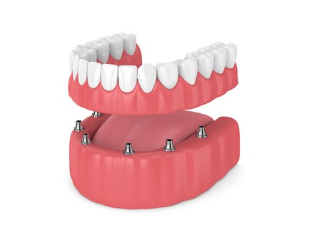 """Looking For New Dentures or Tired of Your Current Traditional Dentures? """"Hybrids"""" To The Rescue!"""