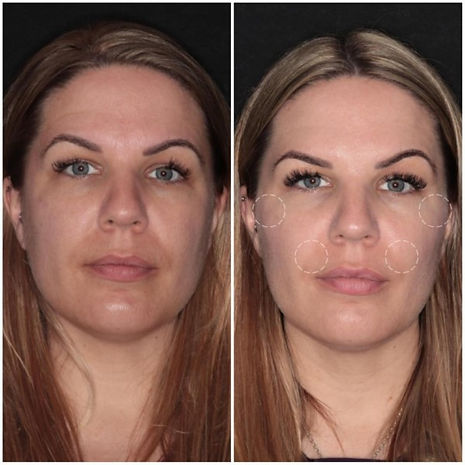 botox-before-photo-petersfield.jpg