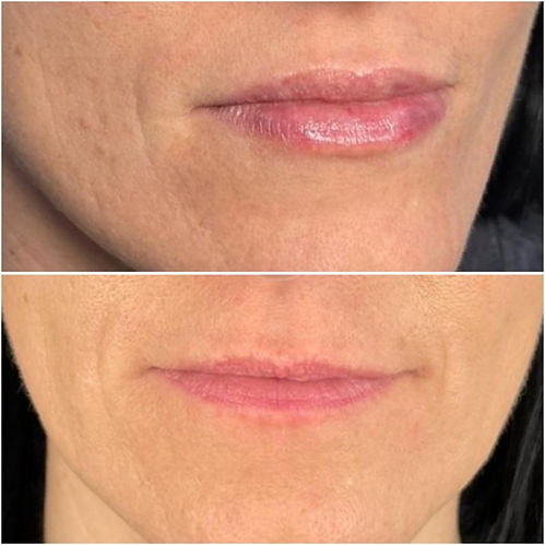 Derma fillers before and afters.jpg