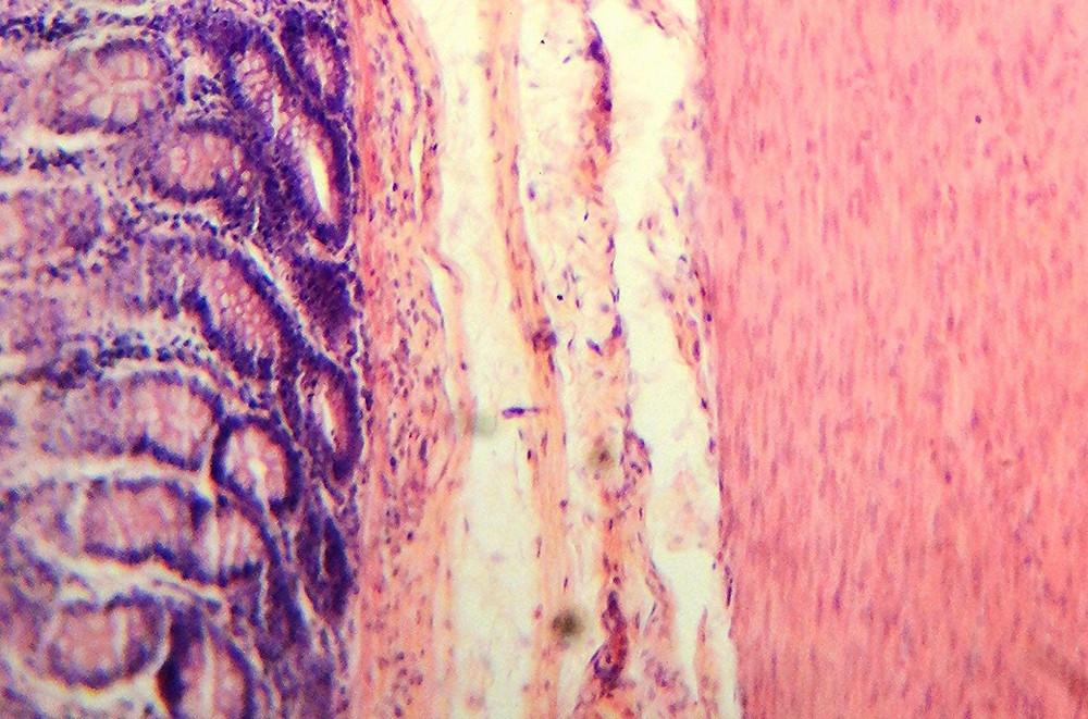 Tejido del intestino grueso