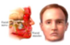 Cabeca Pescoco Paralisia Facial