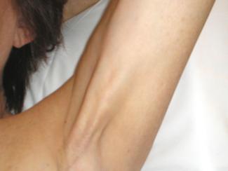 Síndrome da Rede Axilar - Complicação Frequente Após as Cirurgias por Câncer de Mama com Dissecção A