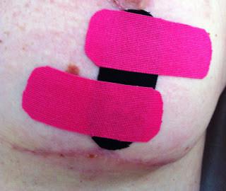 Linfotaping no Tratamento de Cicatrizes