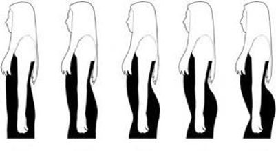 how to fix lordosis