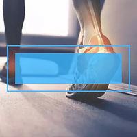 足底筋膜炎 1.jpg