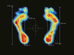 foot pressure.jpe