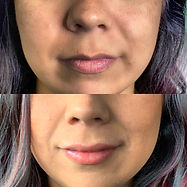 NEEDLE-LESS Lip Filler