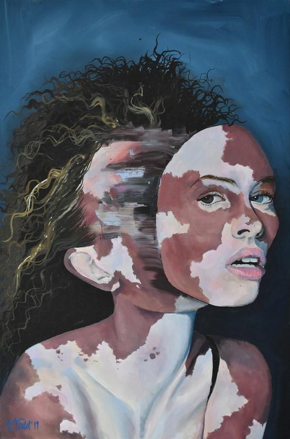 Rise of the Divine Feminine - Beautiful Vitiligo