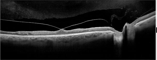 OCT_2b_Enhanced-HD-Line-Scan-Chorioretin