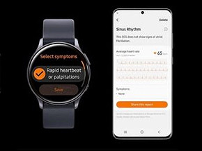 Smart Watches Aren't So Smart for All EKG Monitoring