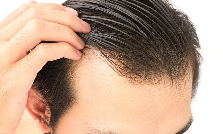 Most Common Causes of Hair Loss in Men