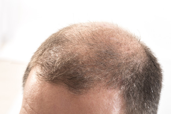 The Leading Cause of Hair Loss in Men