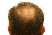 Hair-Restoration-Nashville