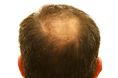 Hair-Restoration-Nashville