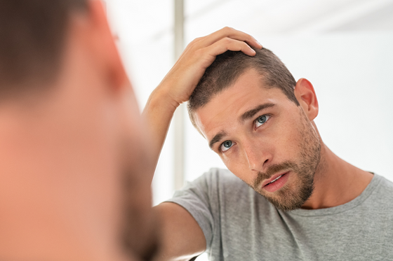 Frequently Asked Questions about Hair Restoration
