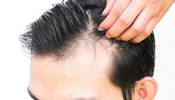 5 Tricks to Stop Thinning Hair