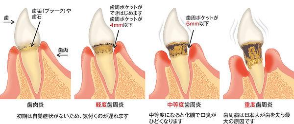 初期~重度歯周炎.jpg