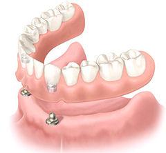 denture-implant_img03.jpg