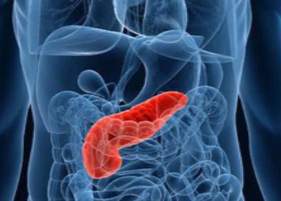 Signos y síntomas del cáncer de páncreas