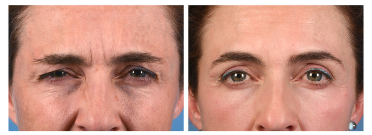 11s-botox-before-and-after.jpg