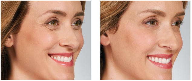 06-botox-crows-feet-lines-before-and-after.jpg
