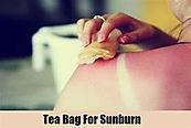 Tea-Bags-For-Sunburn.jpg