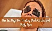 puffy eyes dark circles.jpg