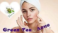 green-tea-for-acne-620x350.jpg