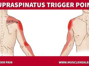 Supraspinatus Trigger Points: Shoulder Pain