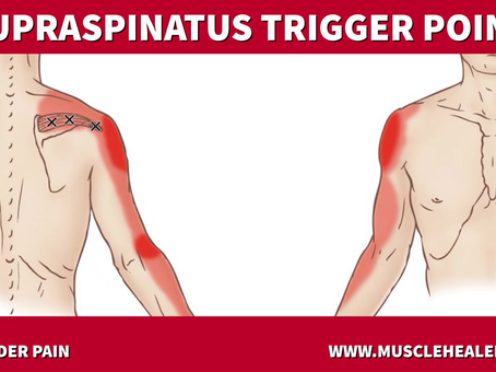 Supraspinatus Trigger Points: Shoulder Pain