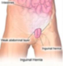 Inguinal hernia diagram.JPG