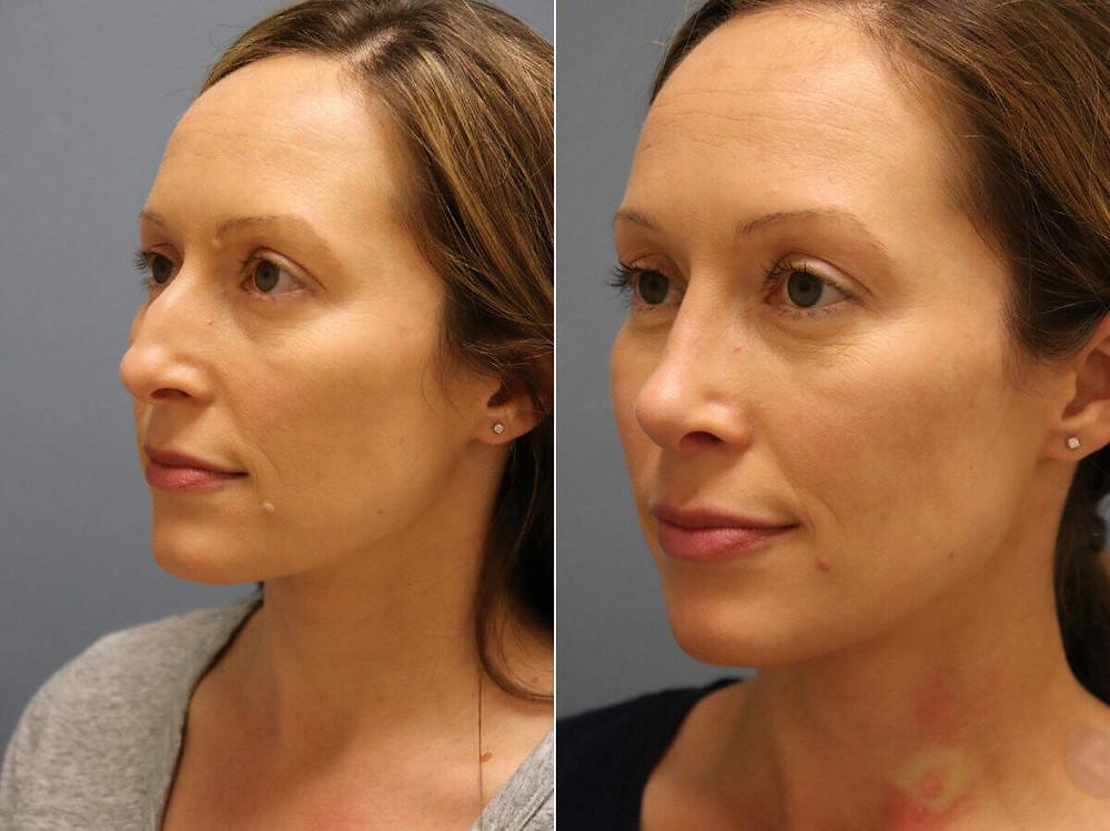 Remodelagem do nariz (rinoplastia) antes e depois, oblíqua esquerda