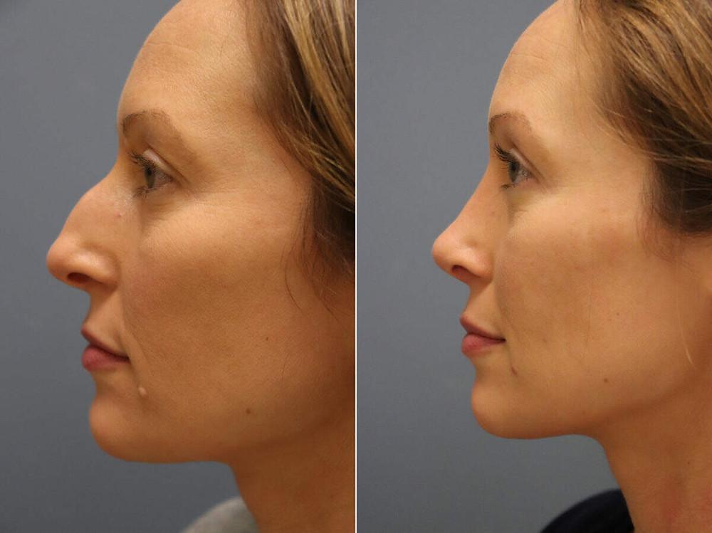 Remodelagem do nariz (rinoplastia) antes e depois, lateral esquerdo
