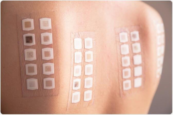 Teste Alérgico de Contato (Patch Test)